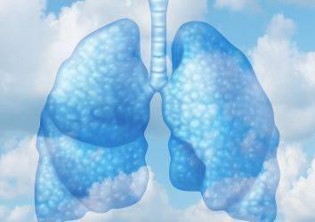 3. evre akciğer kanseri tedavisinde immünoterapi Durvalumab başarısı
