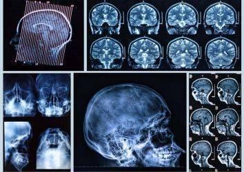 4. Evre Baş ve Boyun Kanserleri Tedavisi için Nivolumab Adlı İmmünoterapi İlacı FDA Onayı Aldı