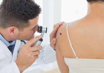 4. evre melanom yaşam süresi istatistikleri ve hakkında bilinmesi gerekenler