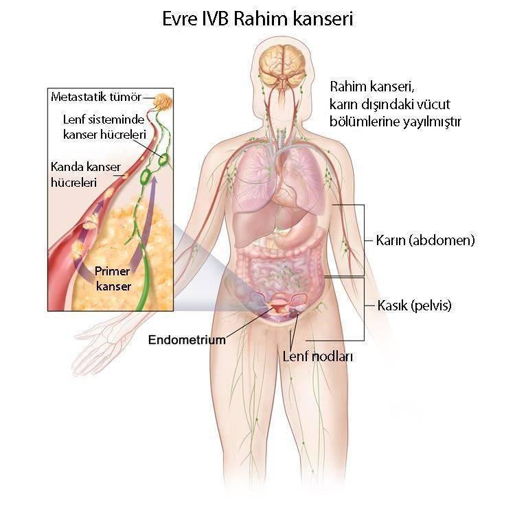 4 evre rahim kanseri evre 4B