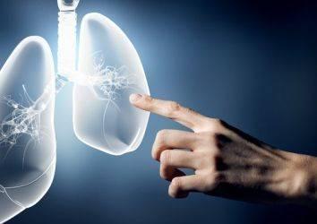 Akciğer kanseri hakkında gerçekler