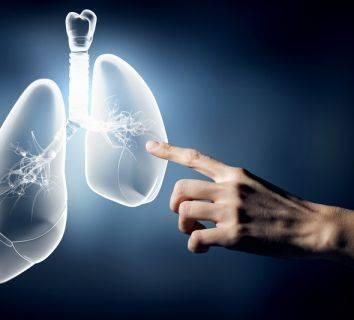 Akciğer kanserinin küçük hücreli olmayan türünün tedavisinde yeni bir ilaç yaşam süresini uzattığı için FDA onayı aldı: Osimertinib