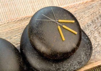 Akupunktur nasıl etki eder sorusuna önemli bir yanıt: nitrik oksit