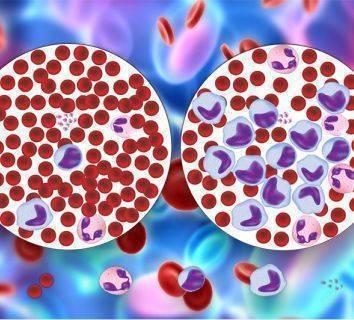 Akut miyeloid lösemi tedavisinde FDA onayı alan ilk akıllı ilaç: Midostaurin