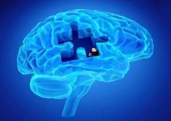 Alzheimer'da Bilişsel Bozukluklarda Kullanılan Donepezil, Beyin Radyoterapisi Alan Hastalarda da Faydalı Mı?