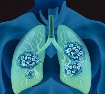 BRAF mutasyonu pozitif 4. evre akciğer kanseri tedavisi için yeni bir tedavi FDA onayı adı