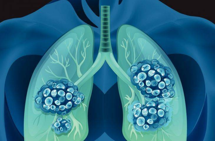 ALK füzyonu nedir? Akciğer kanserinde ALK mutasyonu ne anlama gelmektedir?