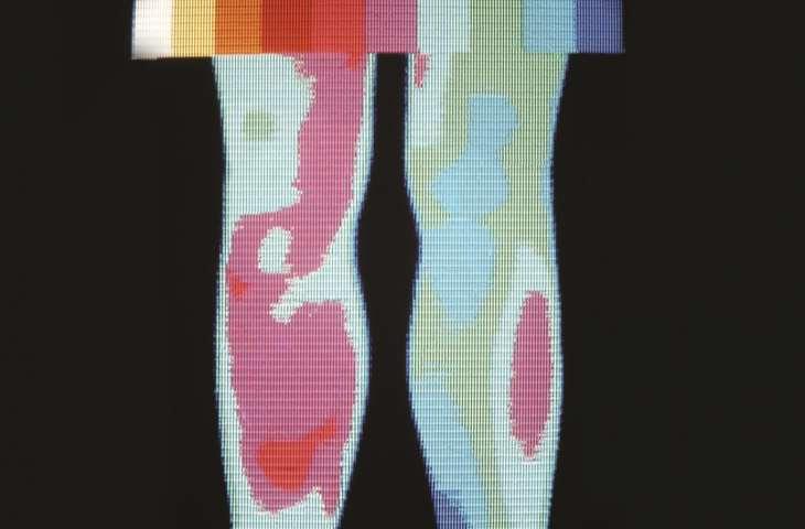 Bazı kanserlerde görülen cilt malign ülserleri (yaralar)
