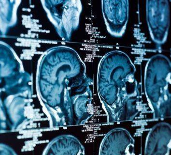 Beyin tümöründe erken tanı ve tarama mümkün müdür? Nasıl teşhis edilir?