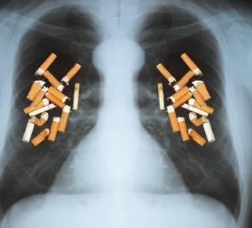 1 Yıl Boyunca Günde 1 Paket Sigara Akciğer Hücrelerinde 150 Mutasyona Neden Oluyor