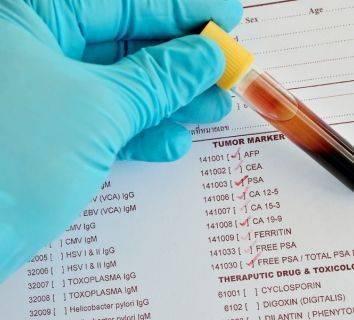 Biyomarker, Tümör Markerı, Biyobelirteç Nedir? Kanserde Ne Gibi Rolü Vardır?