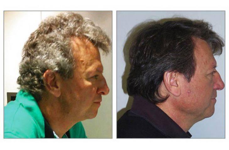 Boya yok – kanser hastasının gri saçı immünoterapiden sonra siyaha döndü