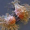 Elektron Mikroskobu Nedir? Kısaca Tarihçesi ve 2017 Nobel Kimya Ödülü