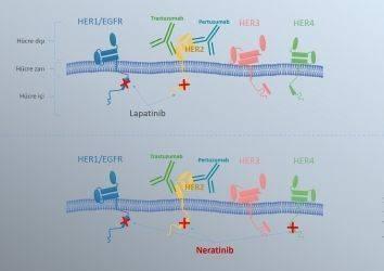 Erken evre meme kanseri tedavisinde yeni bir ilaç: Neratinib