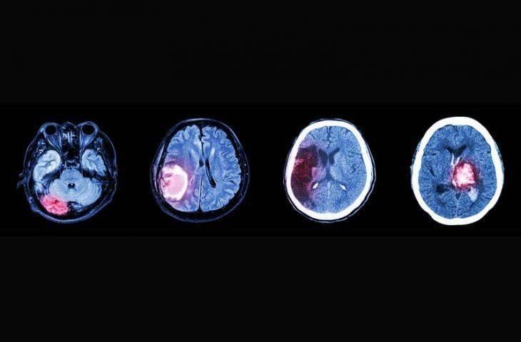 Gliomlar (GBM) ve Non-glial tümörler
