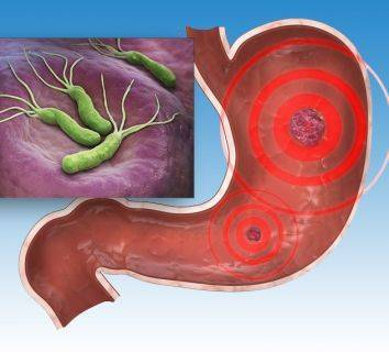 Helikobakter pilori enfeksiyonu tedavisi ile mide kanserinden korunma