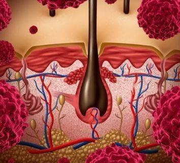 İleri evre melanomda nivolumab ve ipilumumab'ın birlikte kullanımı daha avantajlı olabilir mi?