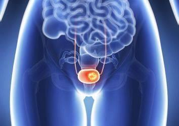 İmmünoterapi ilacı Atezolizumab, mesane kanseri tedavisi için FDA onayı aldı