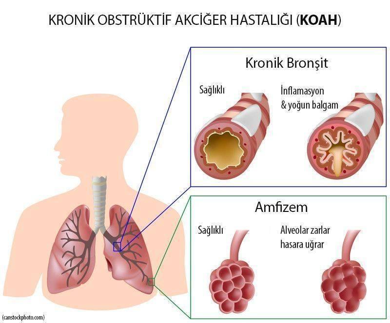 KOAH kronik obstrüktif tıkayıcı akciğer hastalığı 1