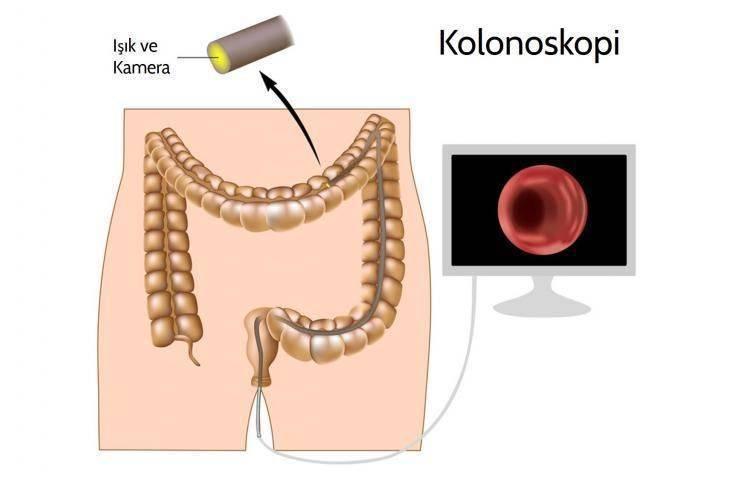 Kalın bağırsak - kolon ve rektum kanserlerinde erken tanı ve tarama mümkün müdür? Kolonoskopi nasıl yapılır? Nasıl teşhis edilir?