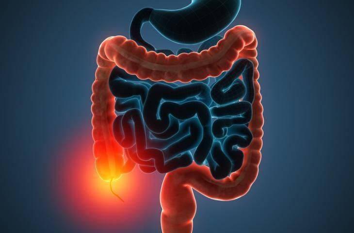 Kalın bağırsak - kolorektal kanser için kolonoskopi ile tarama