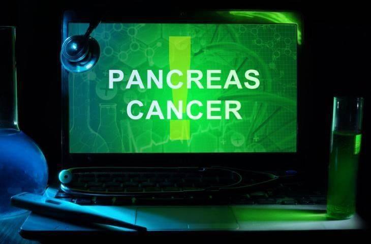 Kandaki küçük partiküller ile pankreas kanserinin erken teşhisi mümkün olabilir mi?