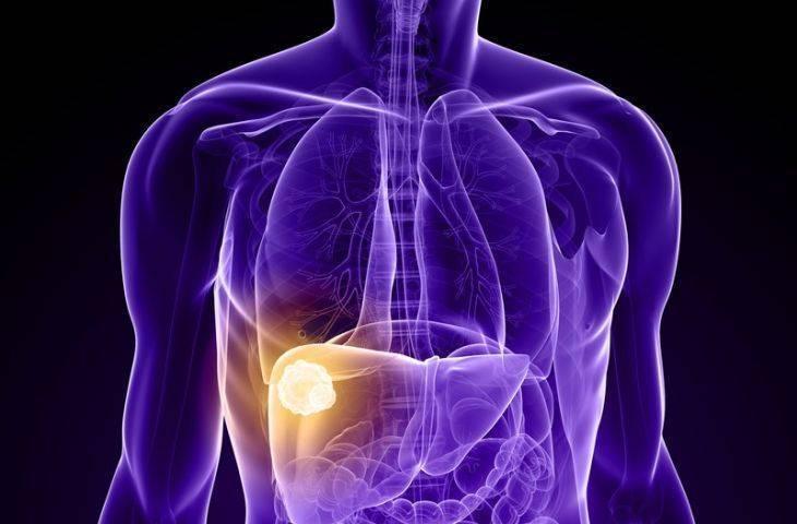 Karaciğer kanseri tedavisi için regorafenib (Stivarga) FDA onayı aldı