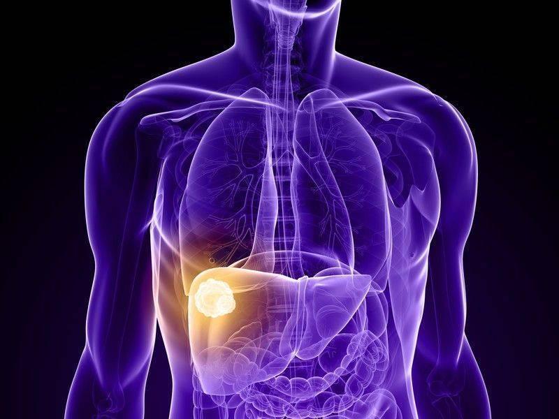 Karaciğer kanseri tedavisi için Regorafenib FDA onayı aldı