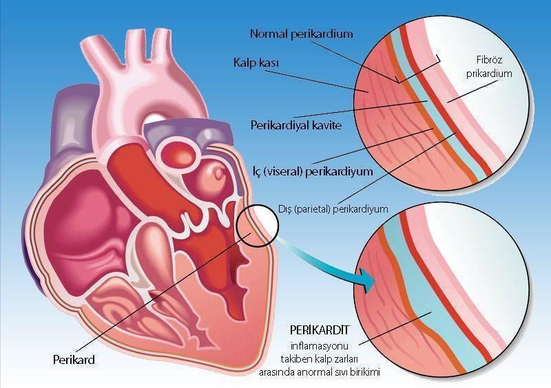 Kaynağı bulunamayan tümörler için yeni bir kanser belirtisi Perikardit kalp zarı iltihabı