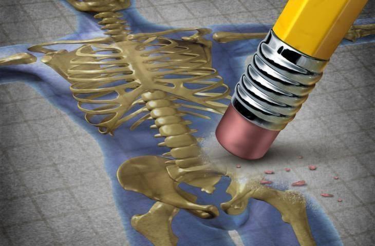 Kemik erimesi ilacı Denosumab, aromataz engelleyici ilaç tedavisi alan meme kanserli hastalarda hastalığın ilerleme ve yineleme riskini azaltıyor