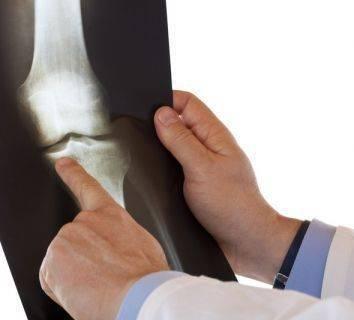 Kemik erimesi (osteoporoz)