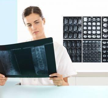 Kemik metastazı nedir? Kanserler neden kemiğe metastaz yapar, nasıl tedavi edilir?