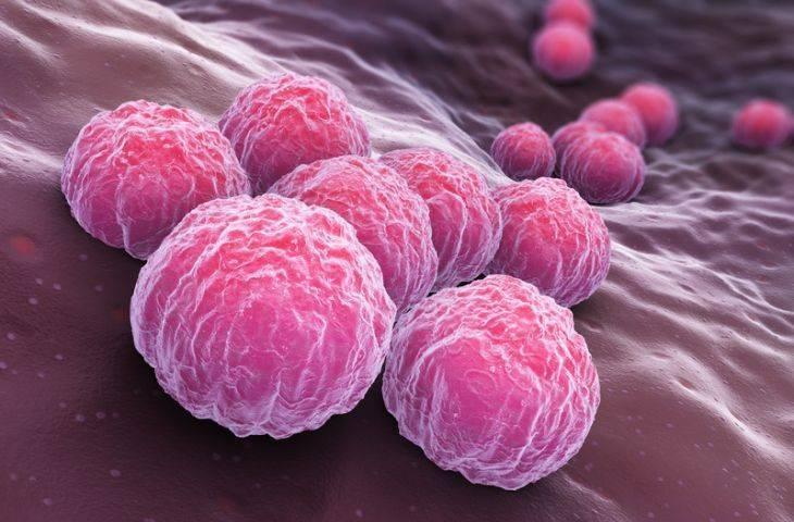 Klamidya, yumurtalık (over) kanseri riskini ikiye katlayabilir
