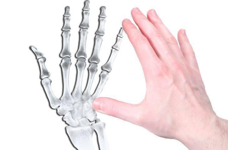 Kondrom nedir? Yumuşak doku kondromu belirtileri ve tedavisi
