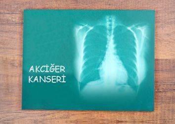 Küçük hücreli akciğer kanseri tedavisinde uzun yıllar sonra etkili gözüken bir ilaç Lurbinectedin