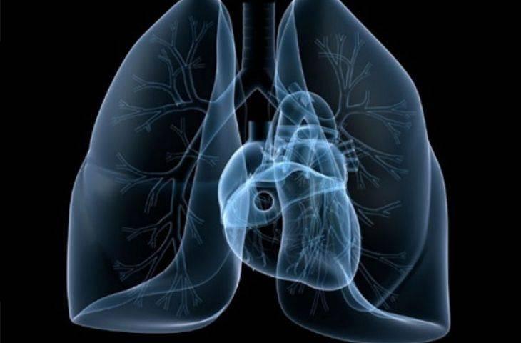 Küçük hücreli akciğer kanserinde göğüs duvarı radyoterapisi avantaj sağlayabilir mi?
