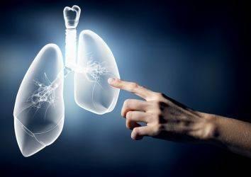 Lenf nodları, 4. evre akciğer kanserinde de önemli bir belirleyici