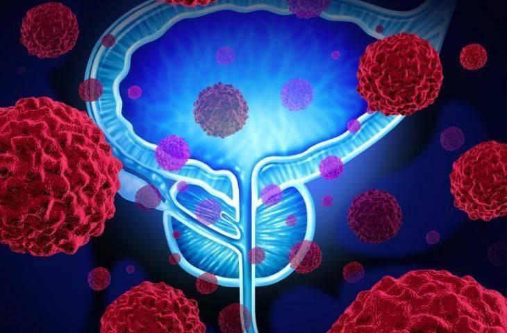 Lenf nodu pozitif prostat kanseri tedavisi için koruyucu radyoterapi yaşam süresini uzatabilir