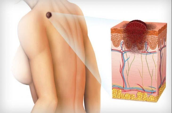 Malign melanom (cilt kanseri) sentinel lenf bezi biyopsisi yapılmalı mı?