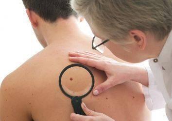 Melanom cilt kanserinde erken tanı ve tarama mümkün müdür? Nasıl teşhis edilir?