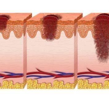 Melanom deri kanserinde evreleme – hastalık yayılımı