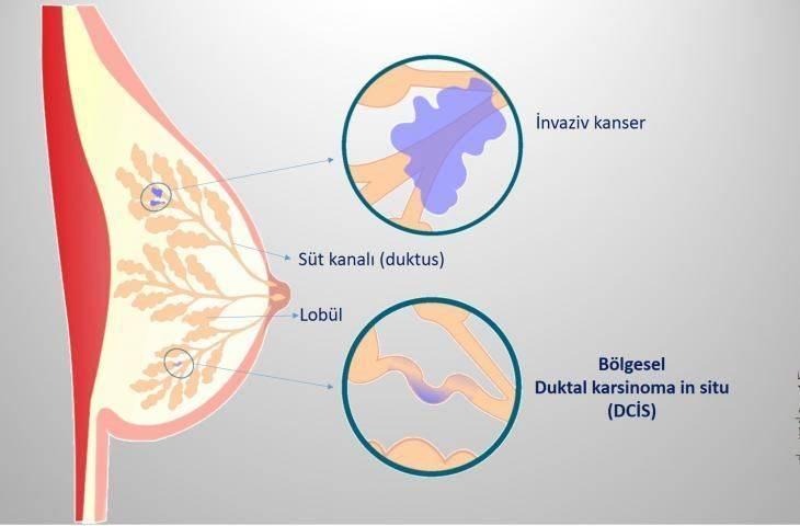 Meme kanserinin bir türü olan düşük-gradlı duktal karsinoma in situ tedavisinde ameliyat yerine aktif takip!