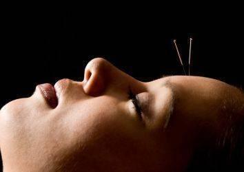 Meme kanserli hastalarda ateş basması tedavisi için akupunktur