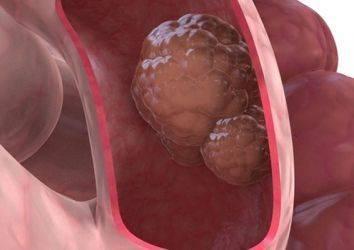 Oktreotid adlı ilaç metastatik nöroendokrin ince barsak tümörlerinin tedavisinde umut vadediyor
