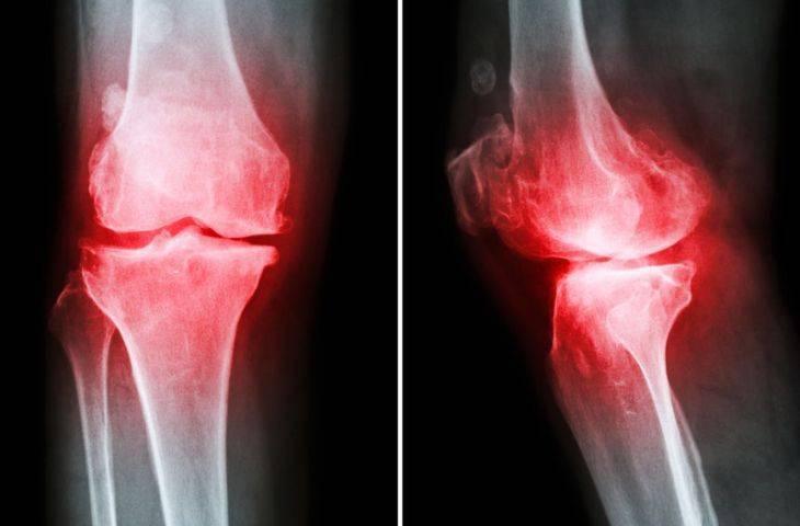 Osteoartrit, eklem kireçlenmesi neden kadınlarda erkeklerde daha fazla?