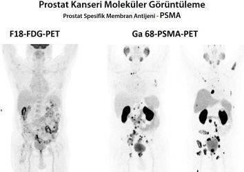 Prostat kanseri tedavisinde yeni görüntüleme yöntemi: Galyum-68 PSMA-PET