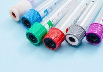 Prostat kanseri teşhisinde PSA testinden çok daha hassas yeni bir yöntem: Stockholm 3 (STHLM3) testi