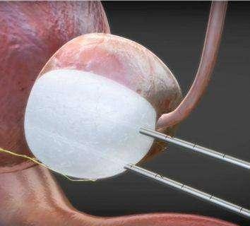 Prostat kanserinde ameliyatsız tedavi: Kriyoablasyon