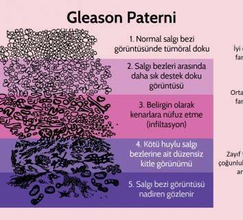 Gleason skoru nedir? Prostat kanserinde gleason dereceleri nasıl hesaplanır?