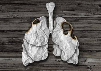 SBRT: Erken evre akciğer kanserinde tek seçenek ameliyat mı?